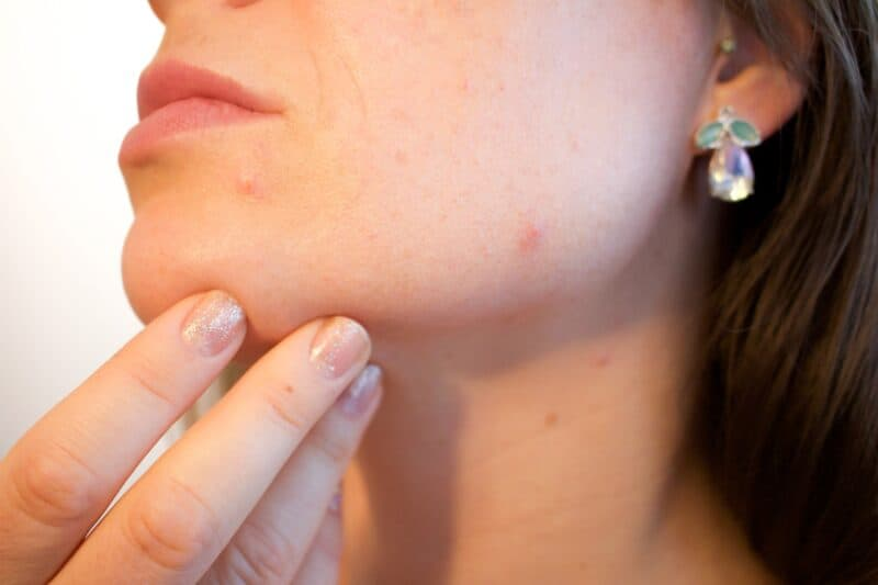 Zits and hormonal breakouts along the jawline and chin can be a common symptom of pregnancy.